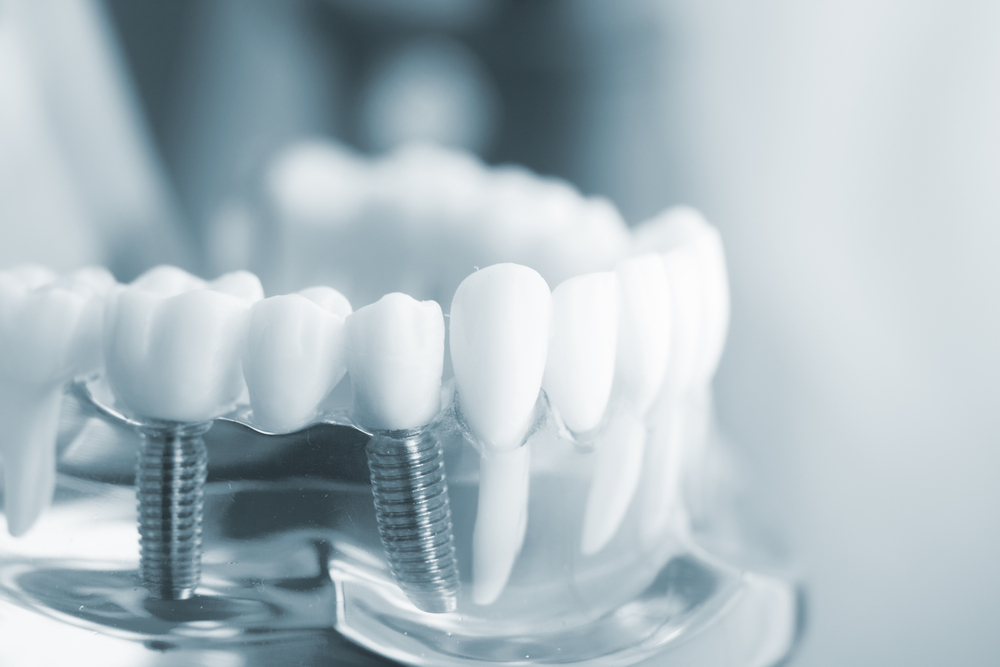 Dental Implants Information To Help You Decide