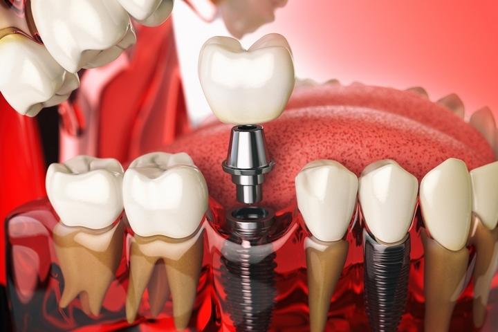 How Dental Implants Can Change the Life of a Person