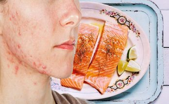 6 Healthy Guidelines to Reduce Acne